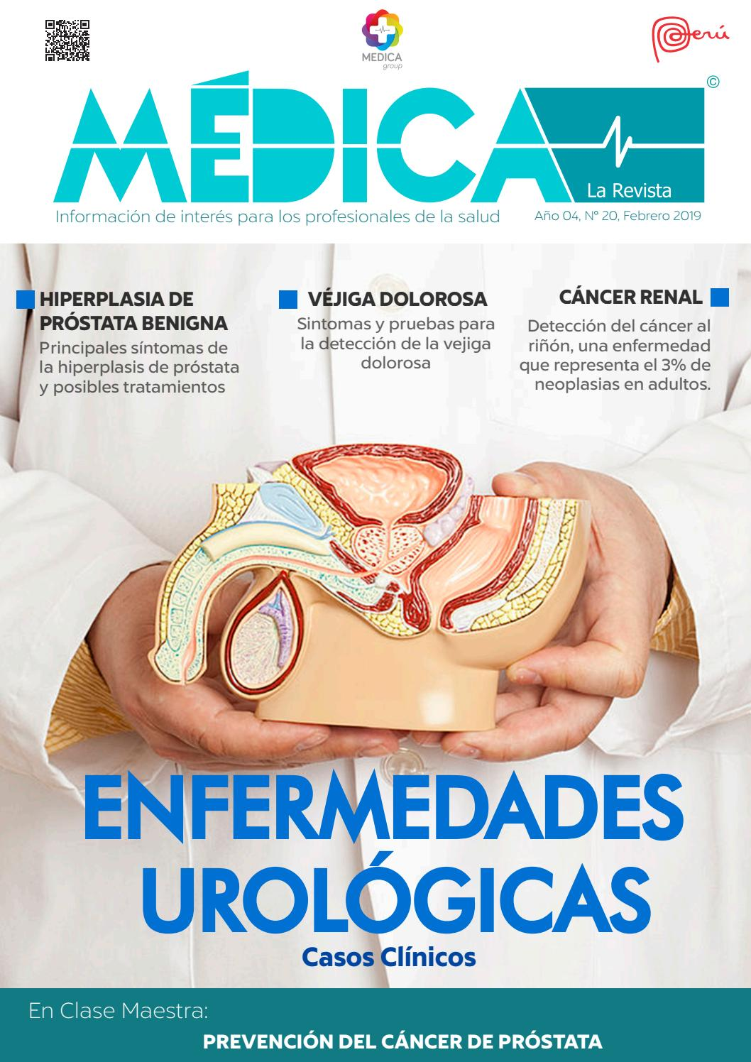 asociacion americana de urologia cancer de prostata