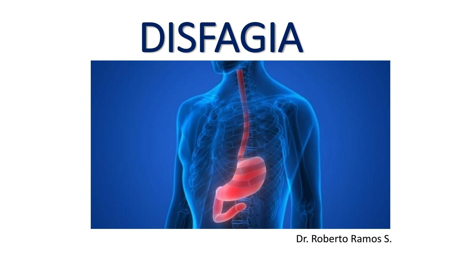 dieta para hernia de hiato y esofagitis