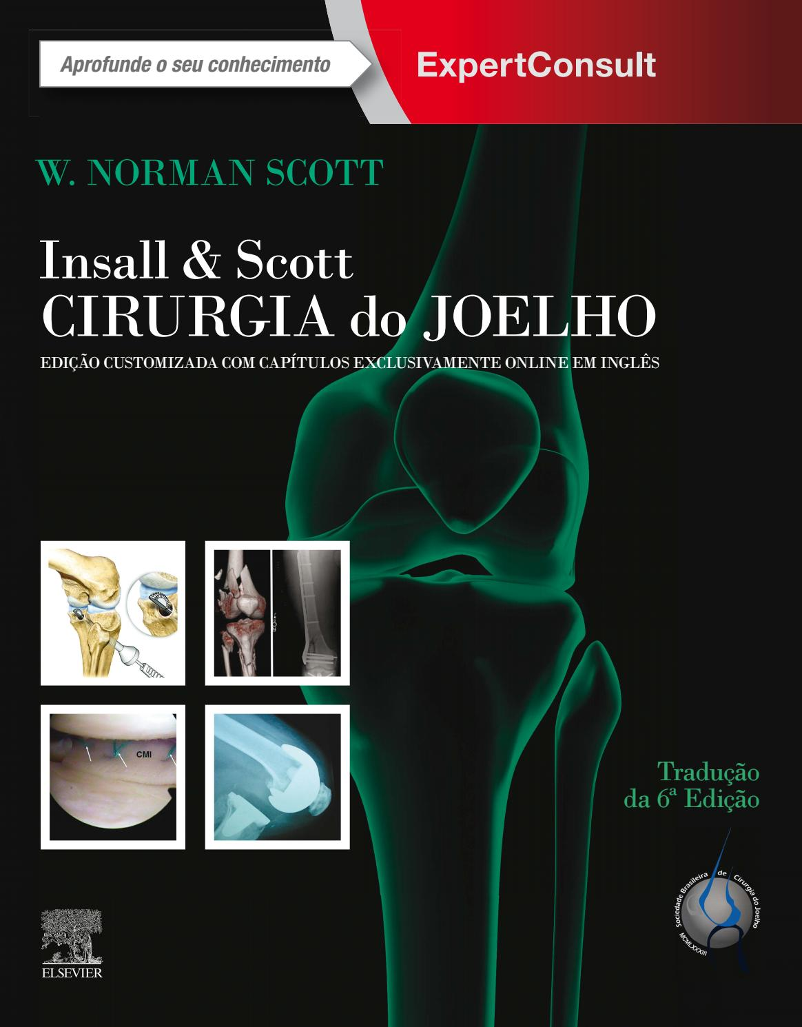 Scott Insall E Scott Cirurgia Do Joelho By Dilivros Editora Issuu