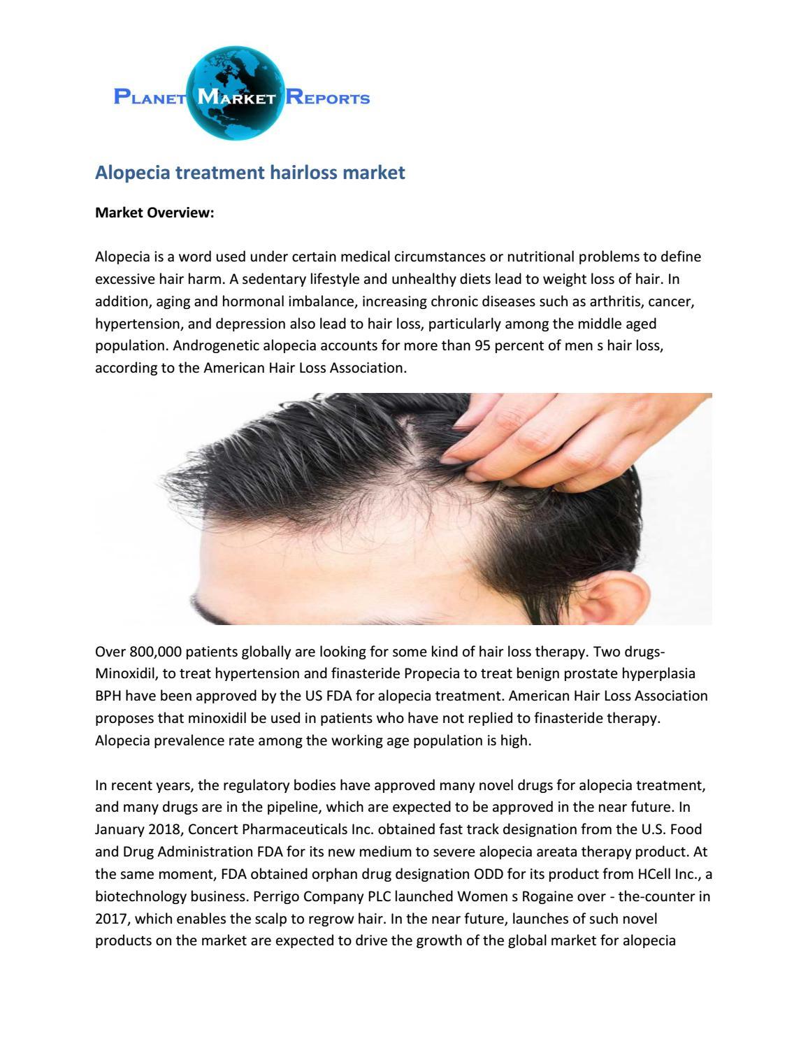 Alopecia Treatment Hairloss Market Analysis And Forecast By William Joe Issuu