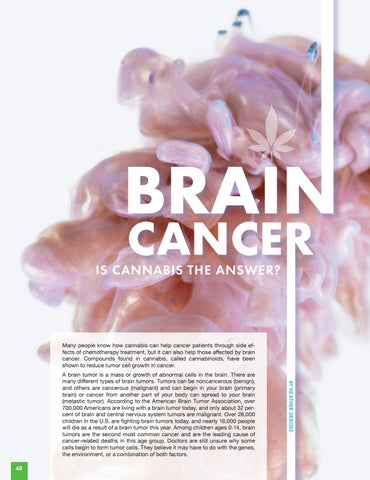 Page 48 of BRAIN CANCER   Is cannabis the answer?