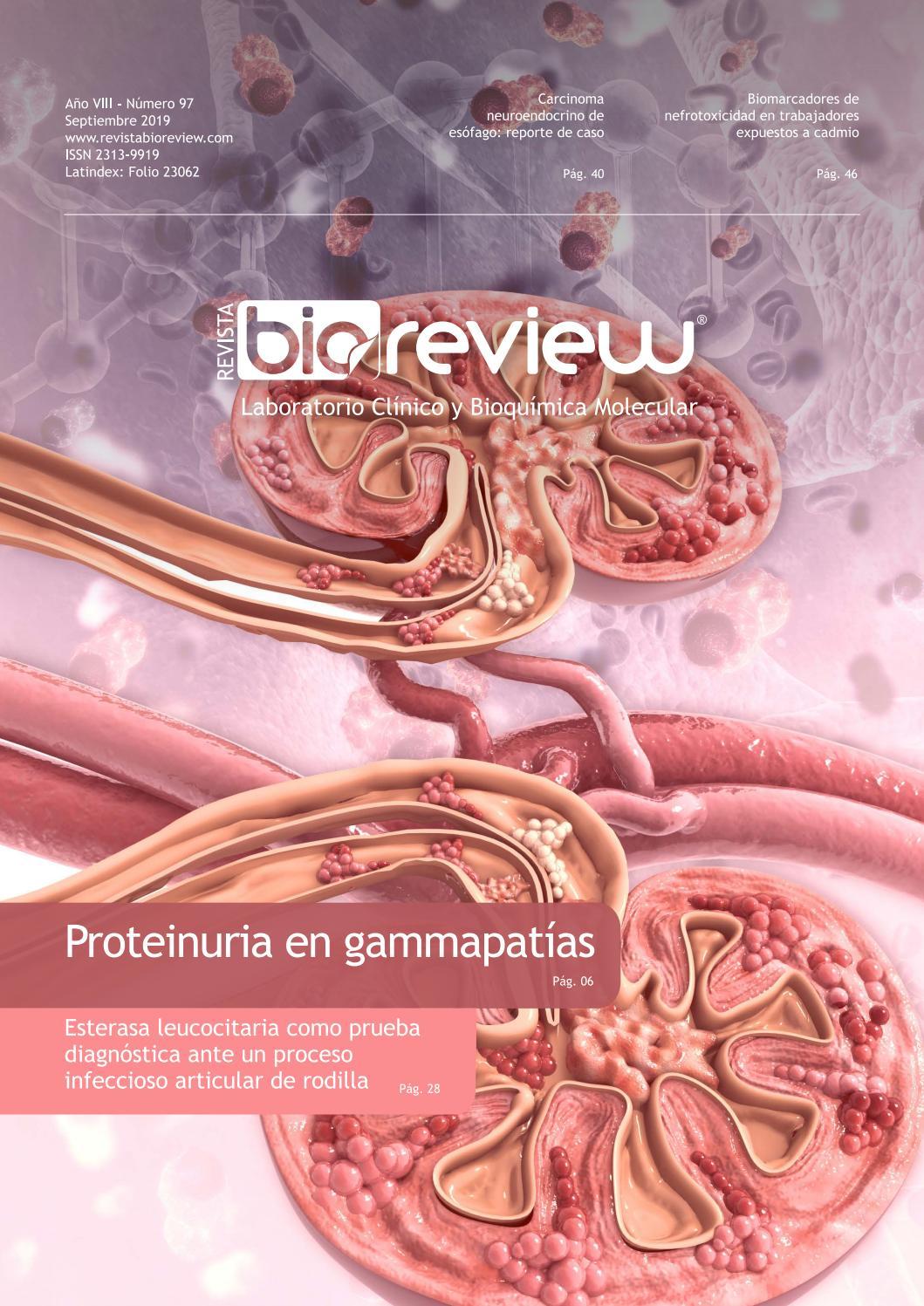 lista de compuestos y cáncer de próstata de cadmio ii e