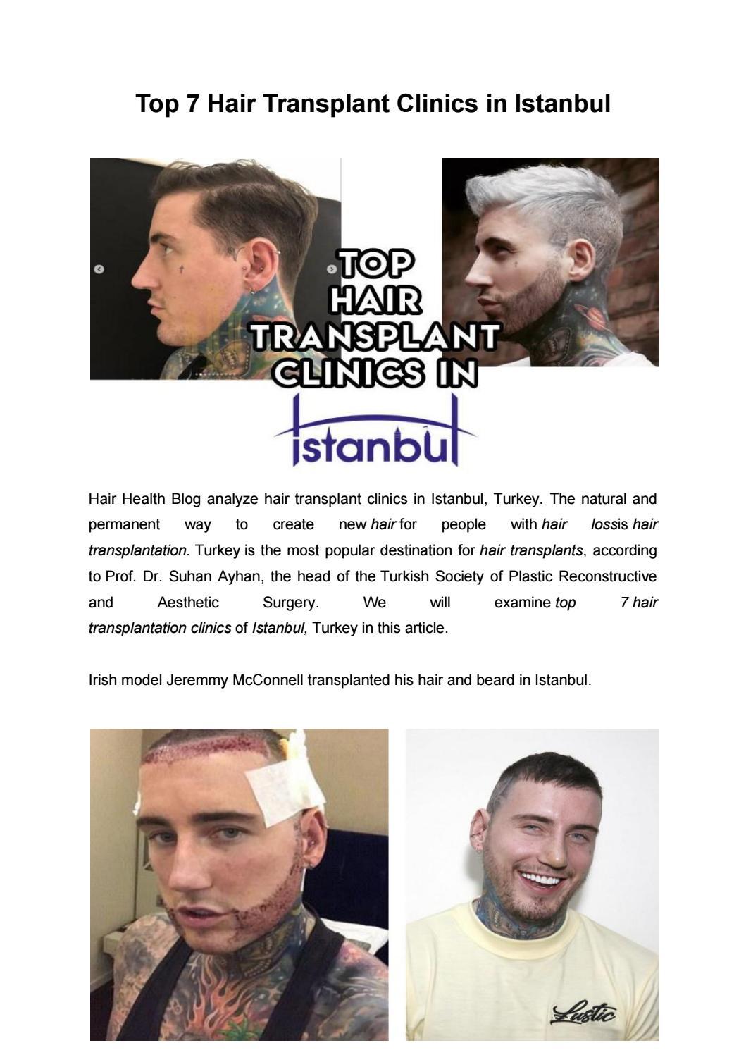 Top 7 Hair Transplant Clinics In Istanbul In 2019 Medium