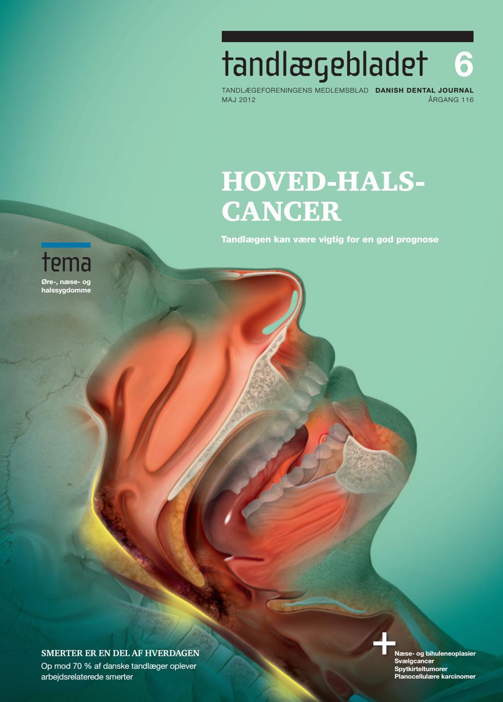 Symptomer mandlerne kræft i Ny form