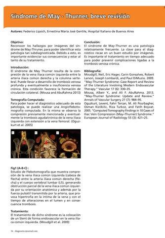 Page 34 of Síndrome de May - Thurner, breve revisión