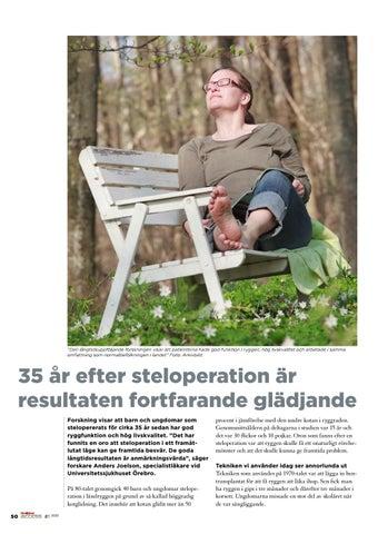 Page 50 of 35 år efter steloperation är resultaten fortfarande glädjande