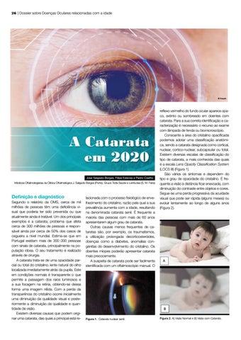 Page 26 of A Catarata em 2020