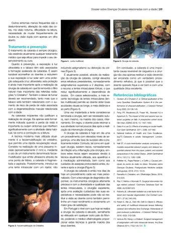 Page 27 of A Catarata em 2020