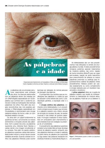 Page 28 of As pálpebras e a idade