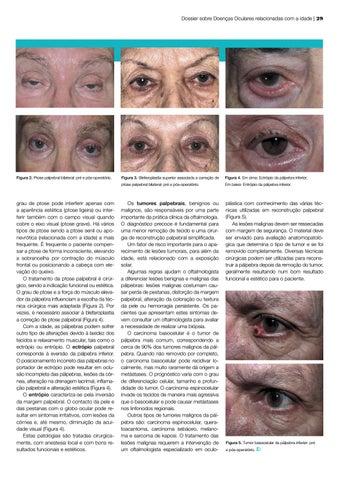 Page 29 of As pálpebras e a idade