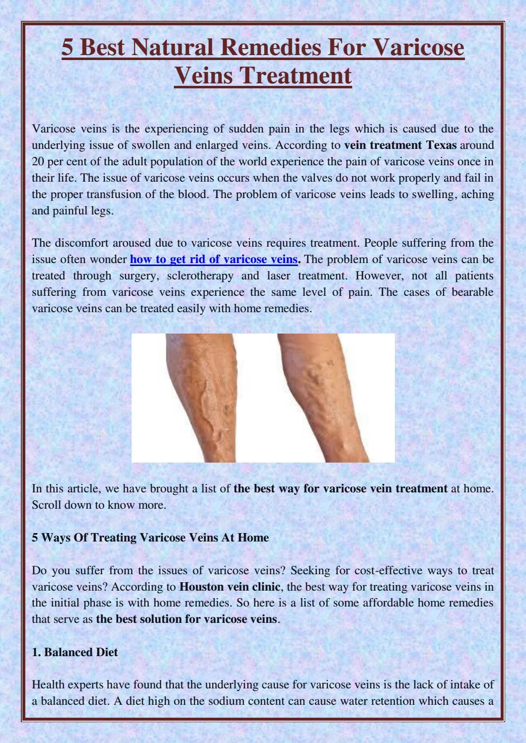 Varicele – metode moderne de tratament